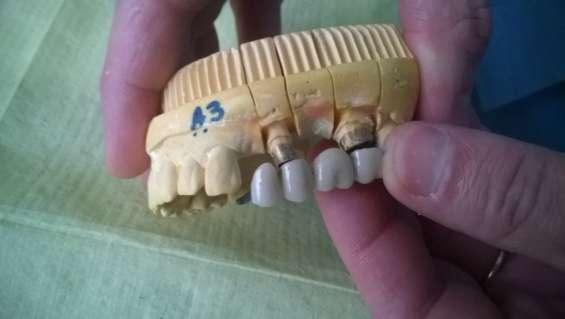 Fundas,coronas dental de porcelana dentistas en paternal caba