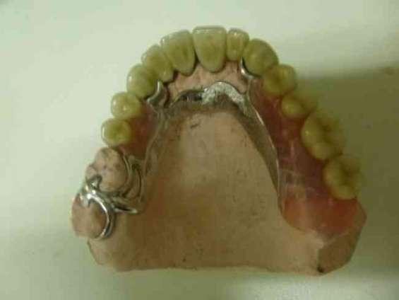 Protesis sin ganchos fijas e implantes cromo