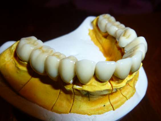Fundas,coronas dental de porcelana dentistas en paternal caba